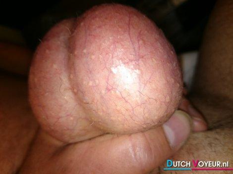 Mijn.ballen